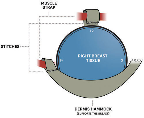 breast-surgery-diagram