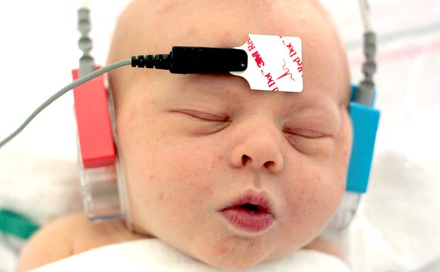 baby brain scan